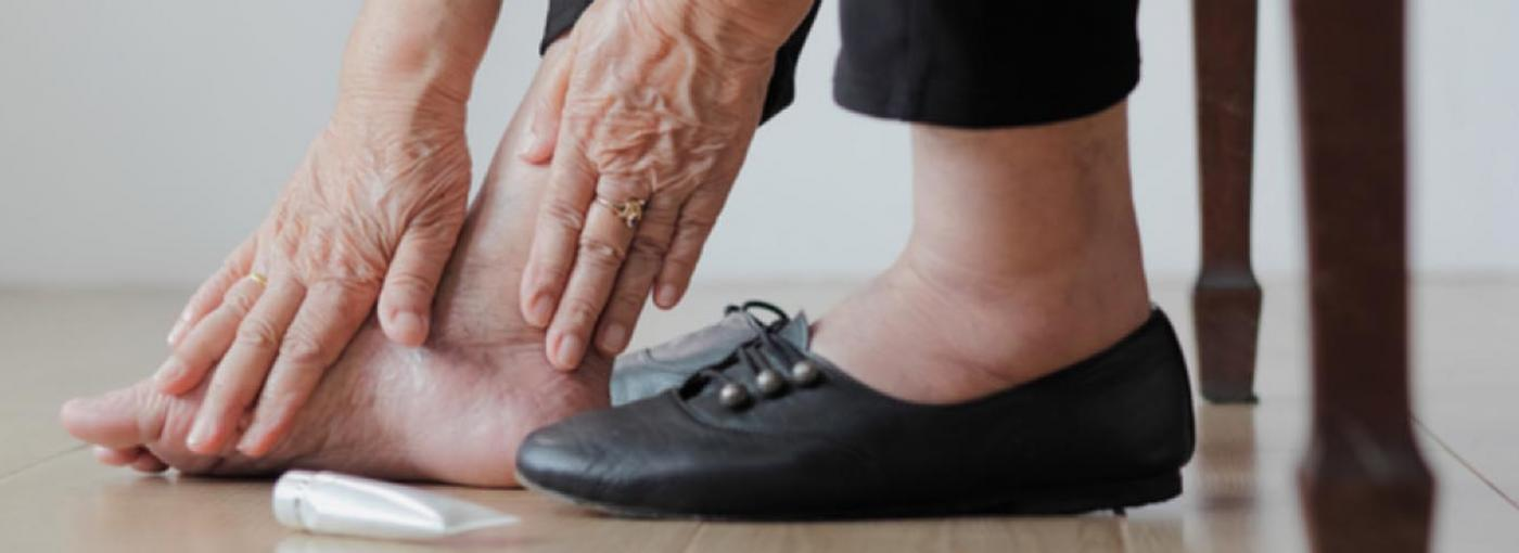 Qué es el pie diabético y cómo se previene