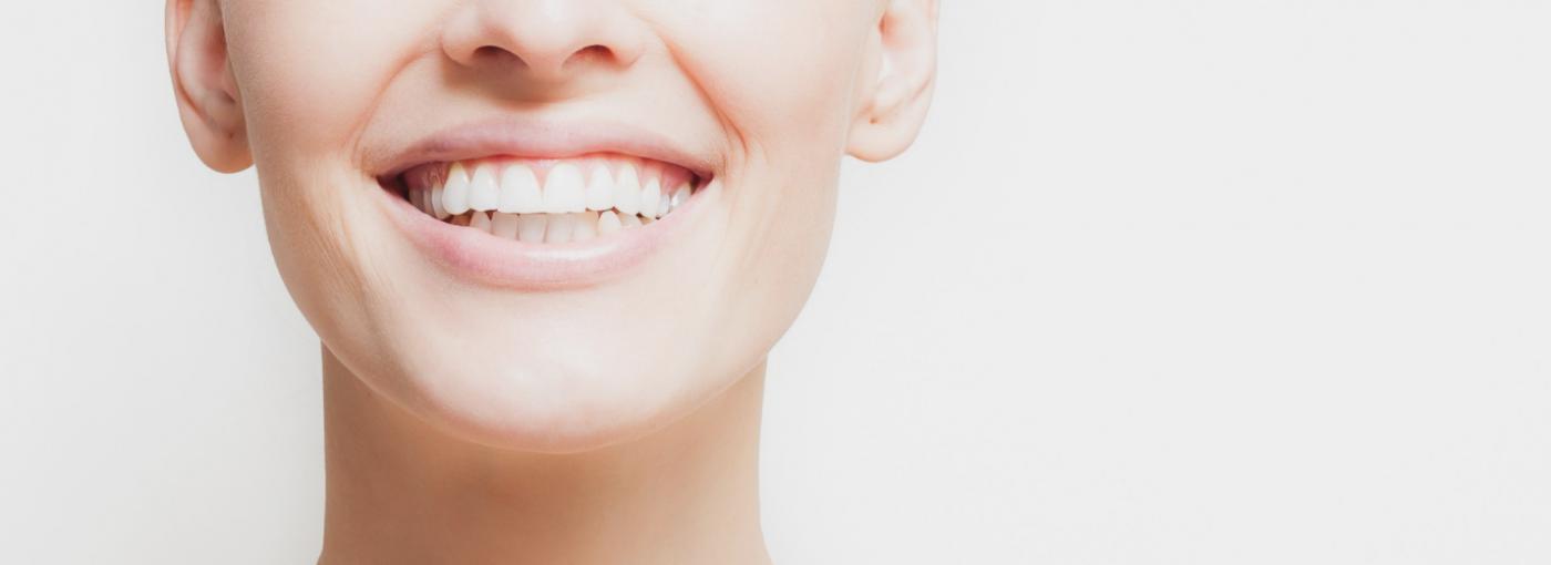 Lo bueno y lo malo del diseño de sonrisa